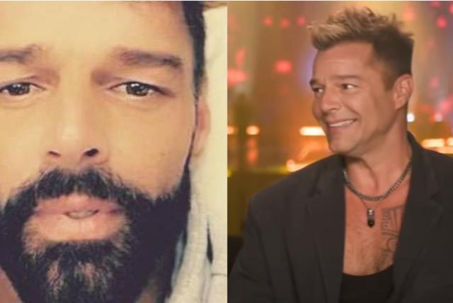 Ricky Martin sorprendió a todos con los cambios en su rostro